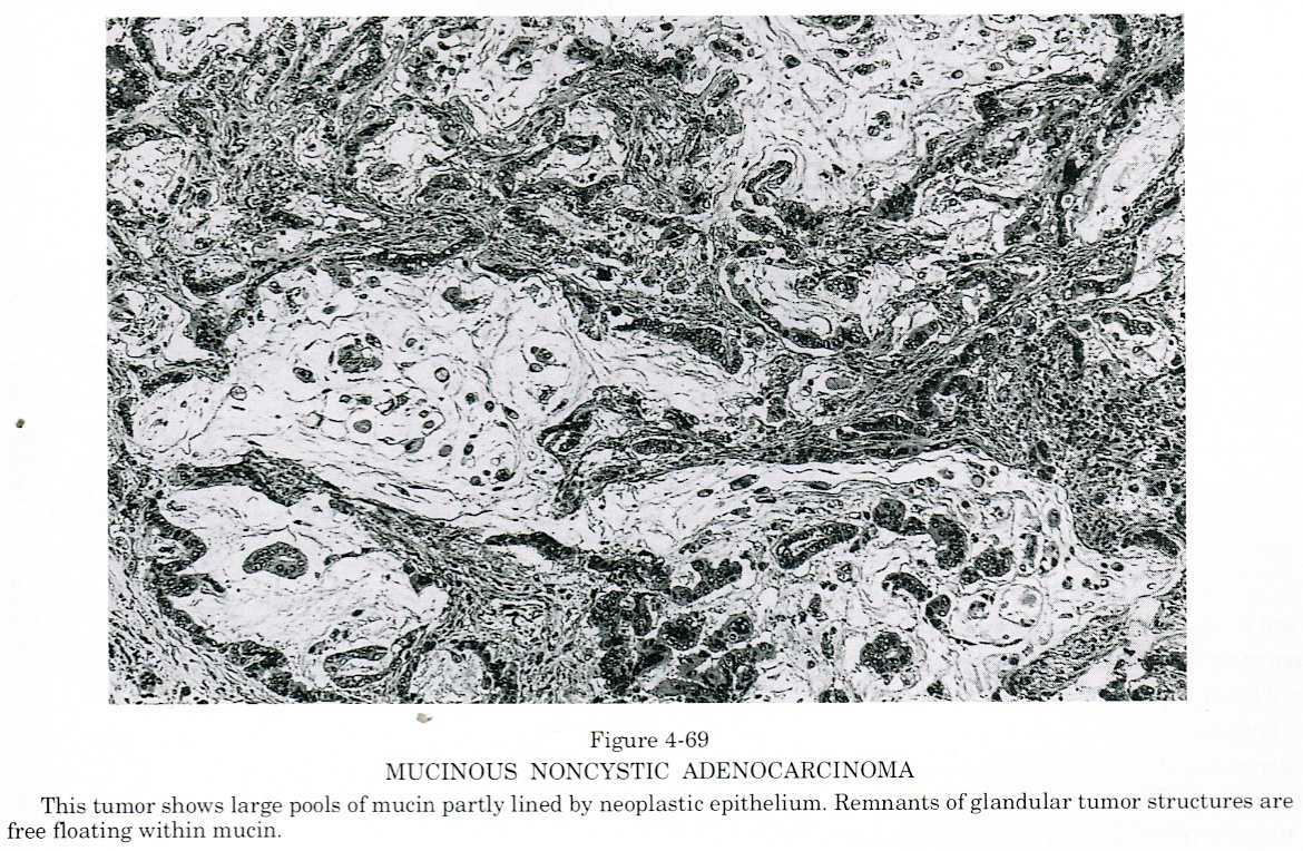 ... neoplastic cells and contain clumps or strands of neoplastic cells