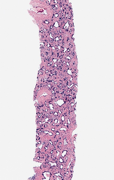 Atrophy Prostate Glands