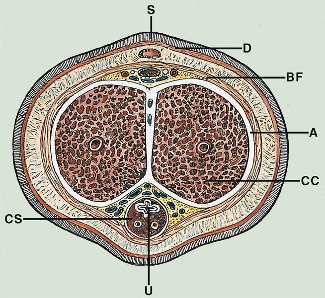 Pathology Outlines Anatomy Of Penis
