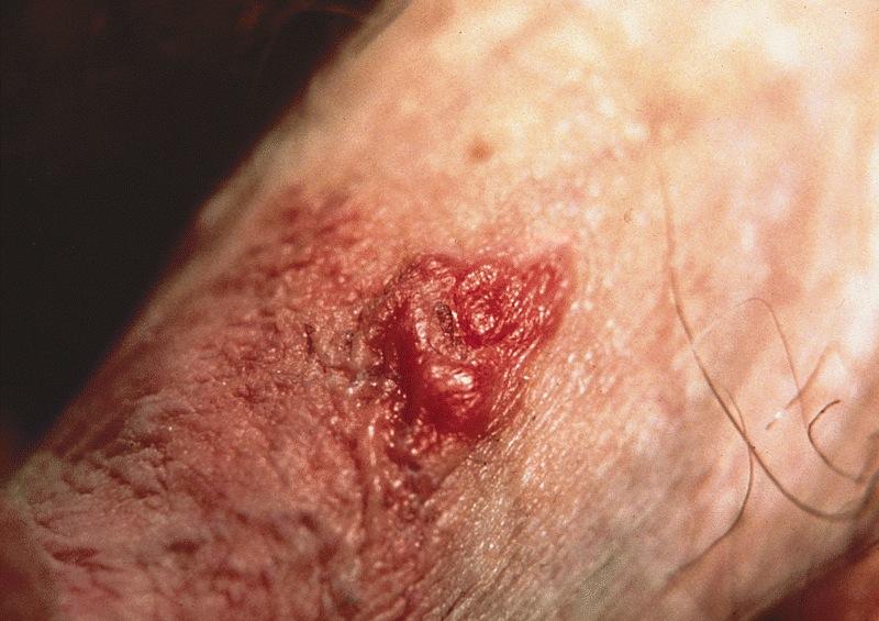 Small lesion on penis masturbation