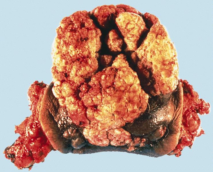 Pathology Outlines - Verrucous carcinoma