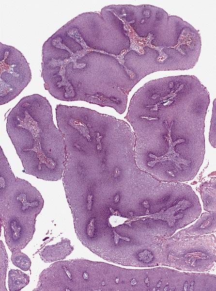Condyloma acuminata mentes patológia. Apa nemathelminthes peran