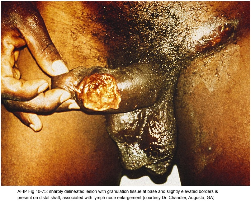 Herpes On Penile Shaft Pictures - myherpestips.com
