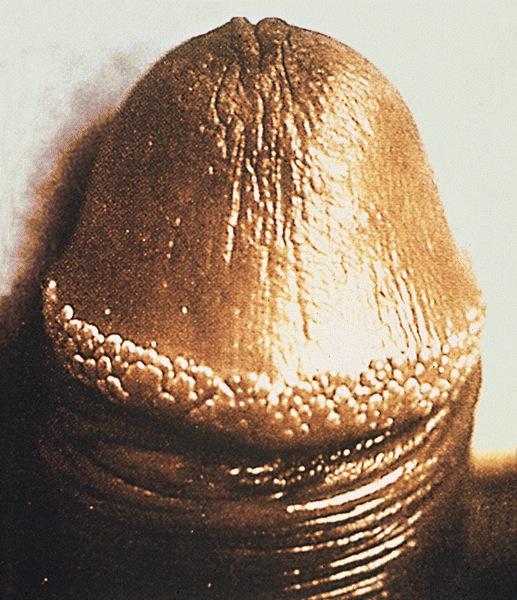 hirsutoid papillomas treatment