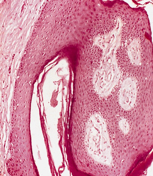 pearly penile papules what is it