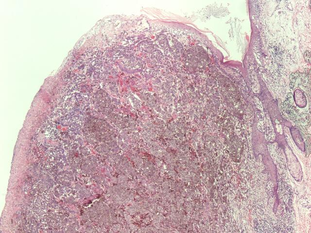 skin cancer outline #2 most common invasive skin cancer, after basal cell carcinoma derived from keratinocytes in epidermal layer risk factors usually uv light / ionizing radiation.