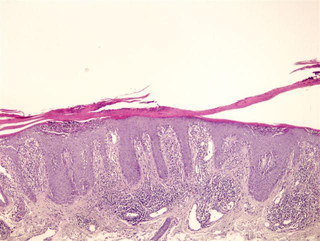 guttate psoriasis pathology