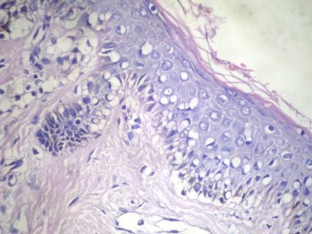 30 year old man with nose lesion
