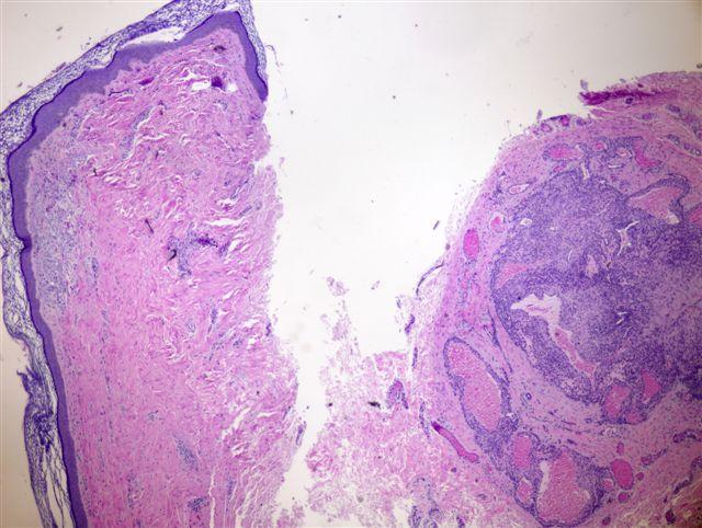 Pathology Outlines Glomus Tumor