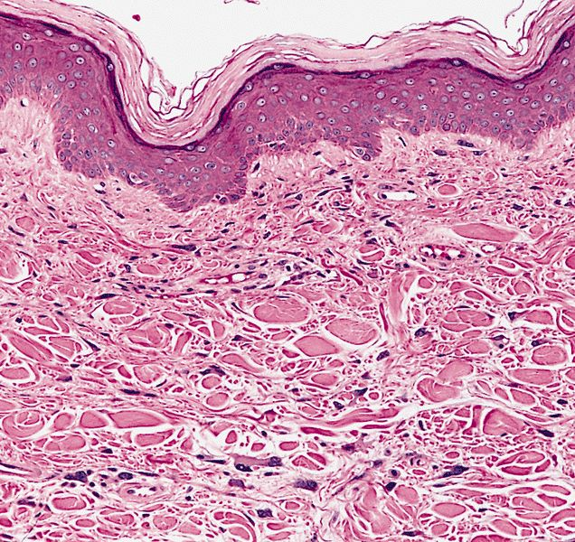 Pathology Outlines - Pleomorphic fibroma