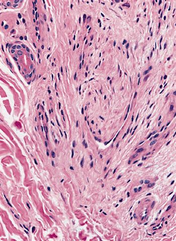 Pathology Outlines  Normal histology of soft    tissue
