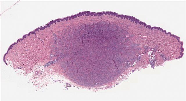 Tumor is more basophilic than surrounding dermis