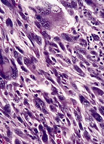 Characteristic bizarre cells