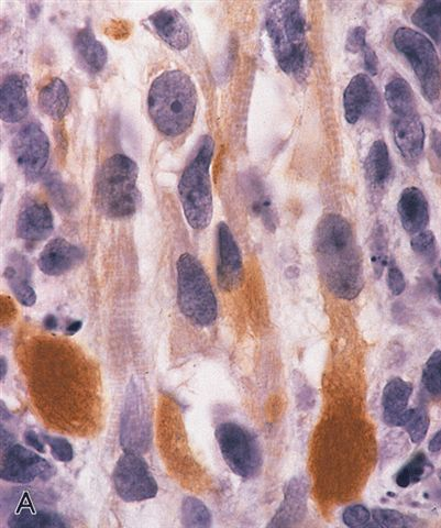 Embryonal Rhabdomyosarcoma Spindle Cell of Thyroid