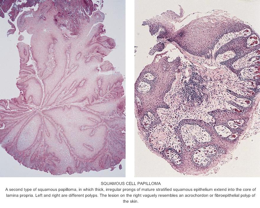 pathology outlines squamous papilloma