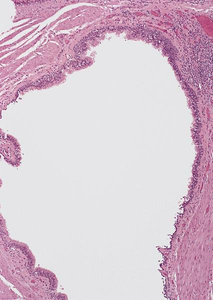 retention cysts or sebaceous cysts. Micro images: cyst #1 lined by