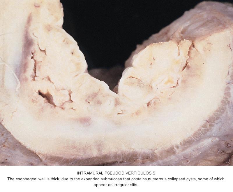 Left Epididymal Cyst