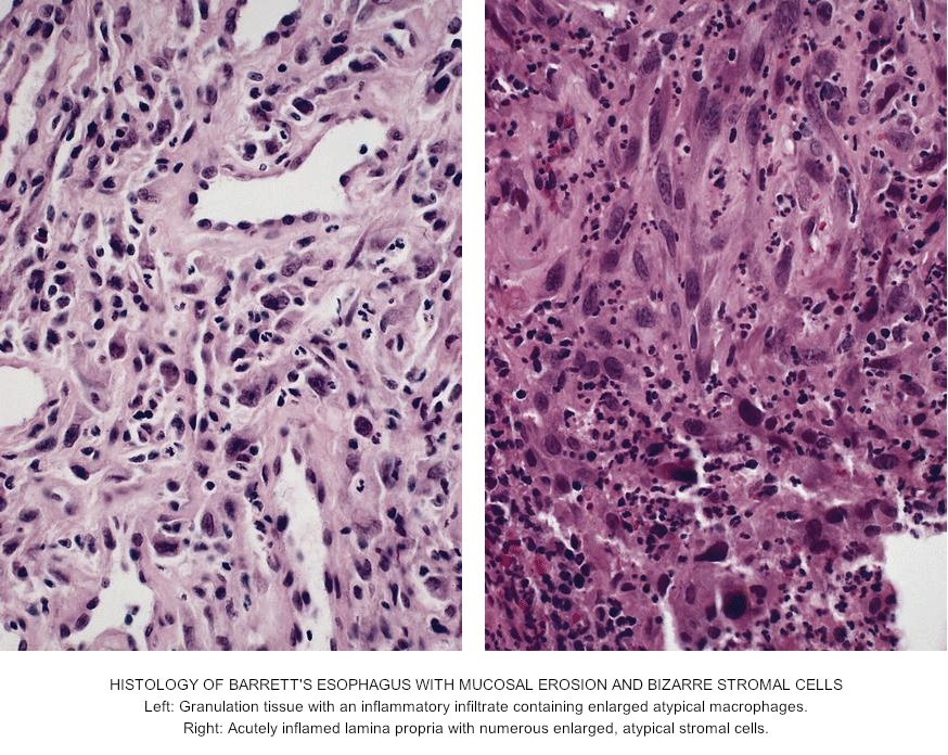 Pathology Outlines Barrett Esophagus Be