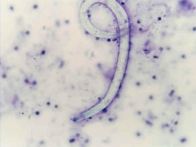strongyloidesdifquik.jpg