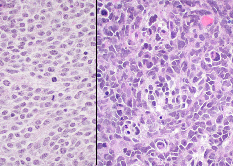 Anaplasia in medulloblastoma