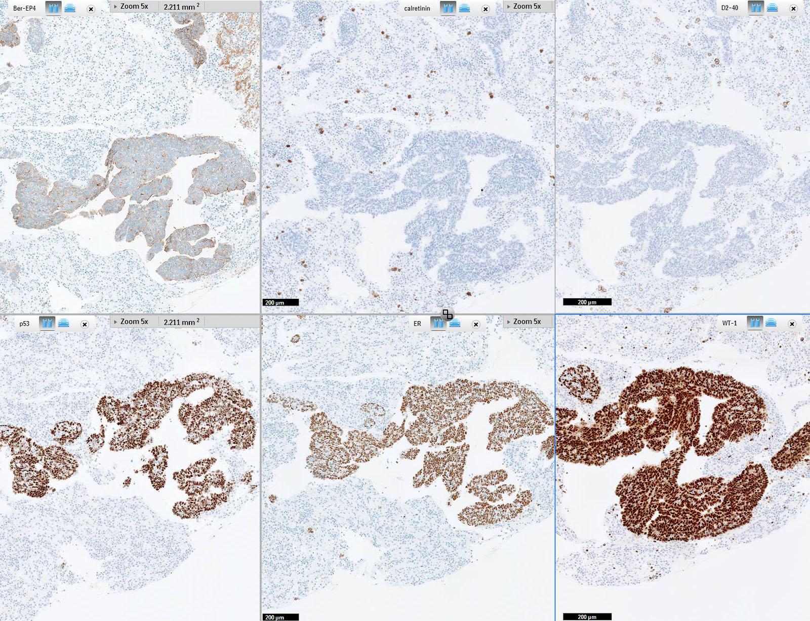 fordított urothelialis papilloma p53)