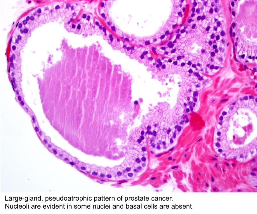 prostatic carcinoma pathology outlines