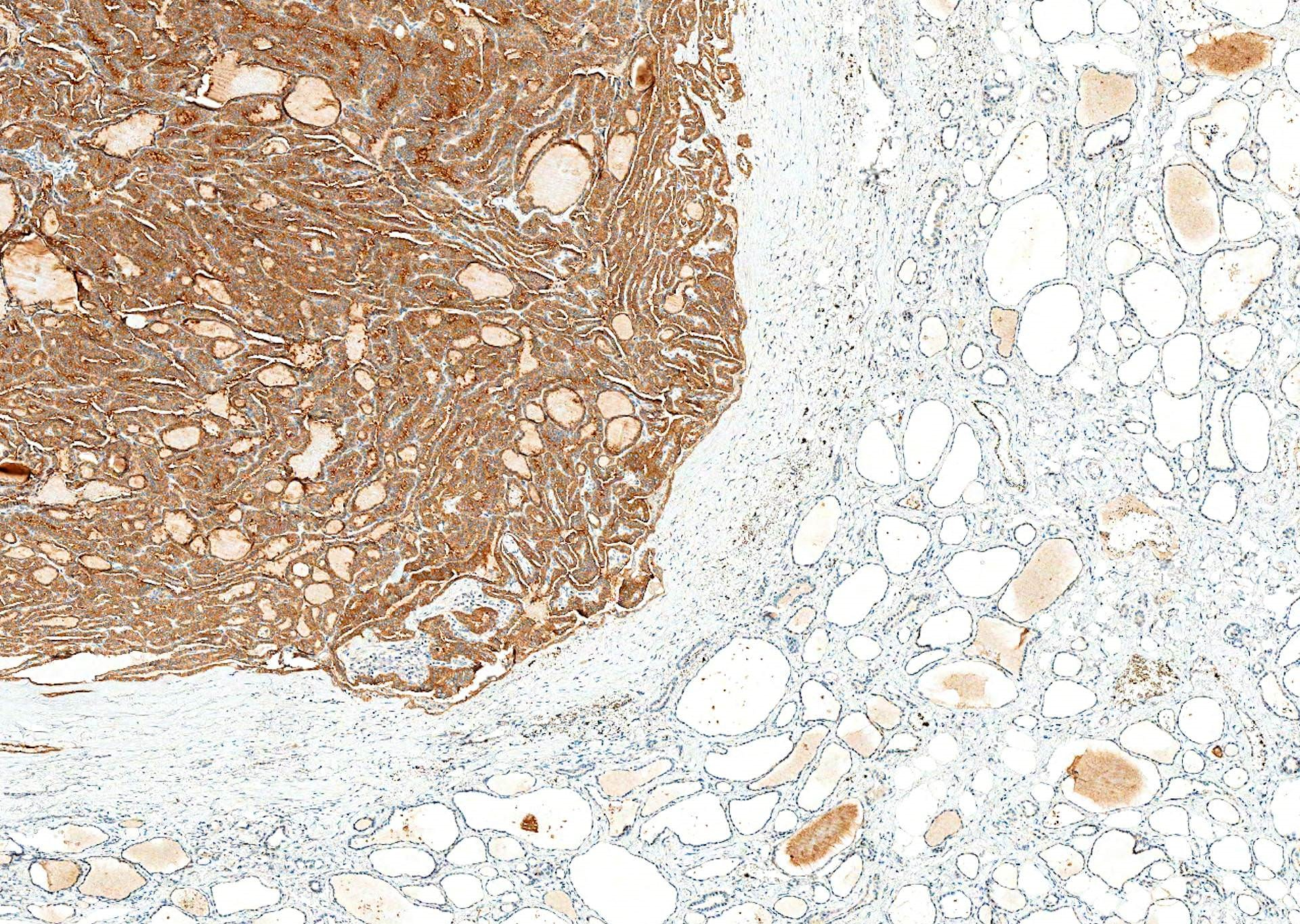 V600E mutant protein is diffusely expressed  in tumor / cancer but not normal tissue