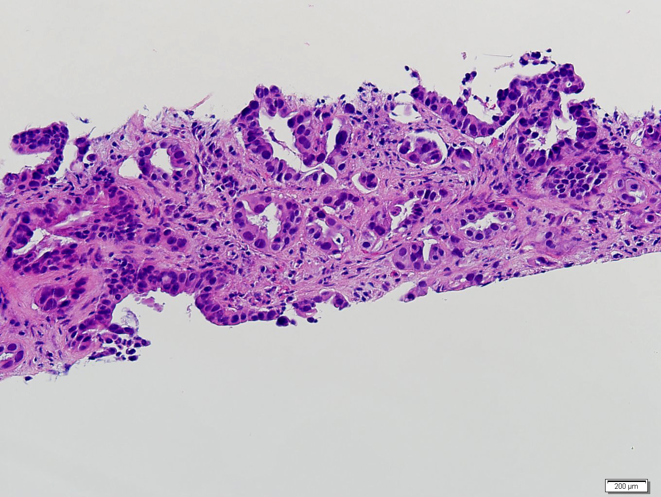 Adrenal metastasis from lung adenocarcinoma