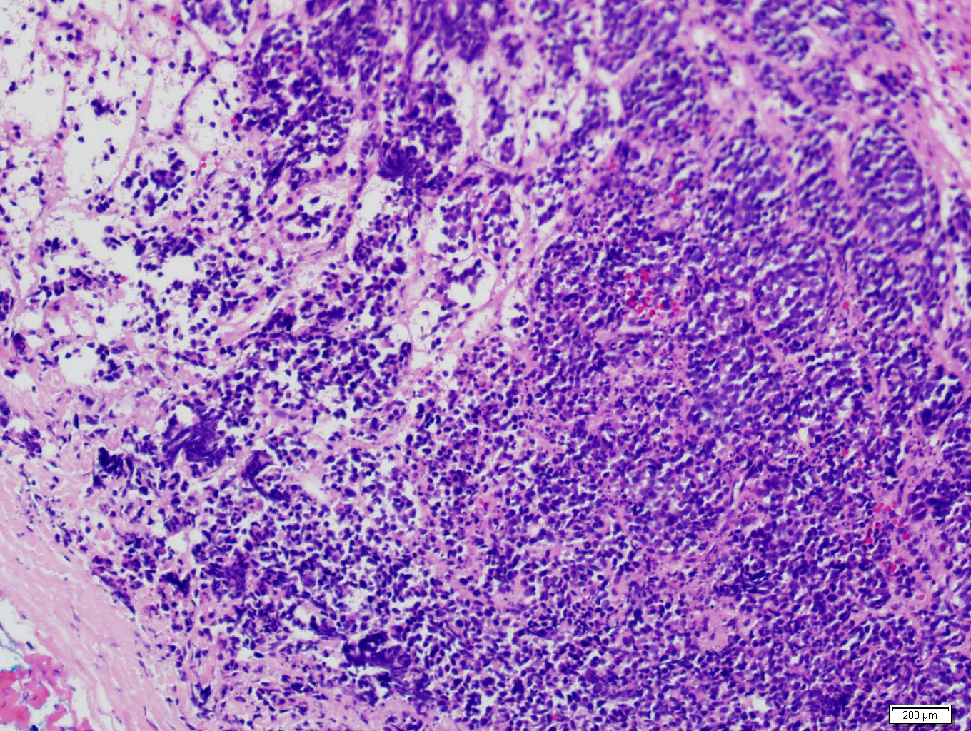 Adrenal metastasis from lung small cell carcinoma