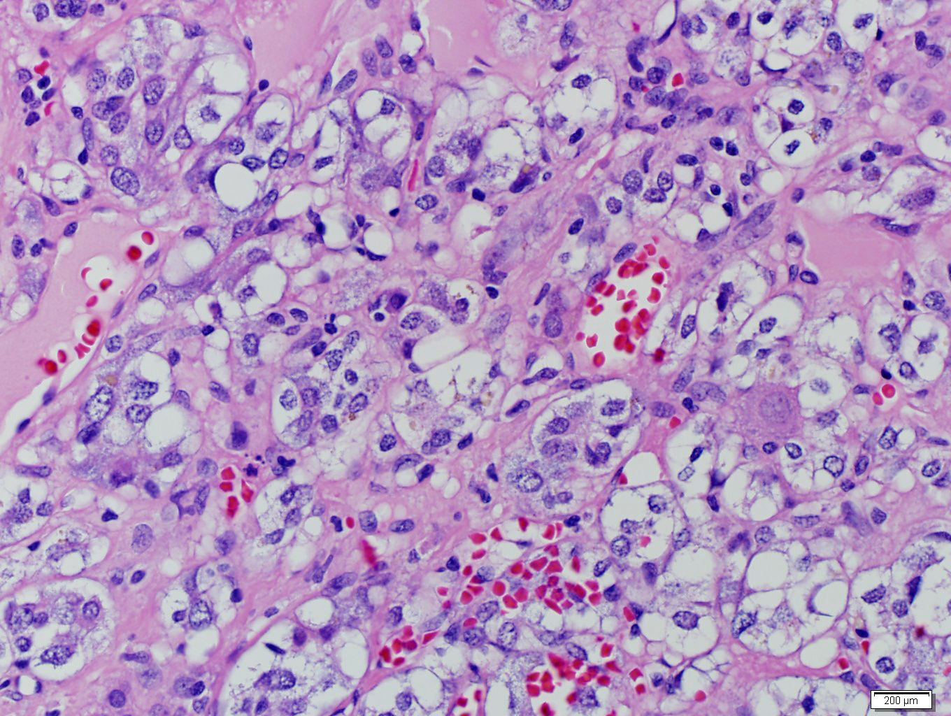Adrenal metastasis from clear cell renal cell carcinoma