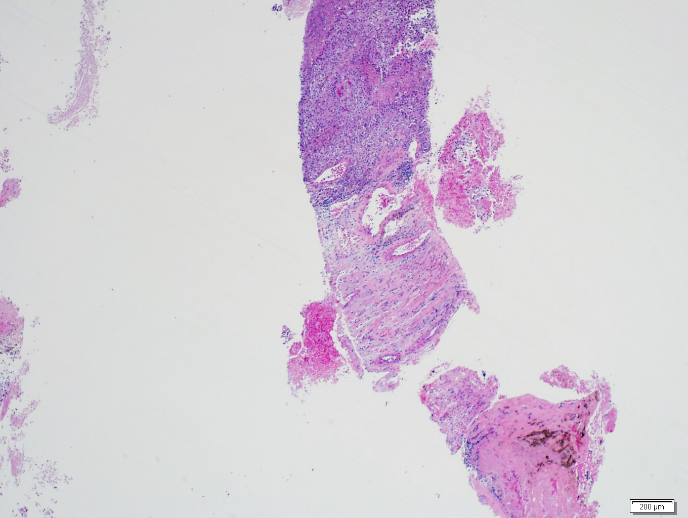 Adrenal metastasis from melanoma