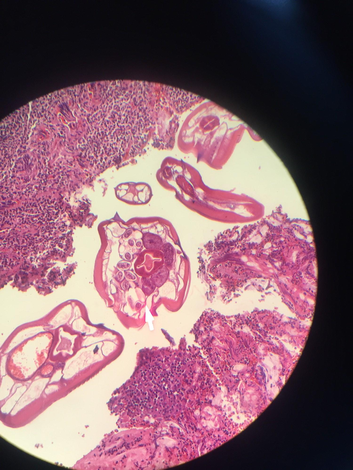 enterobius vermicularis appendix