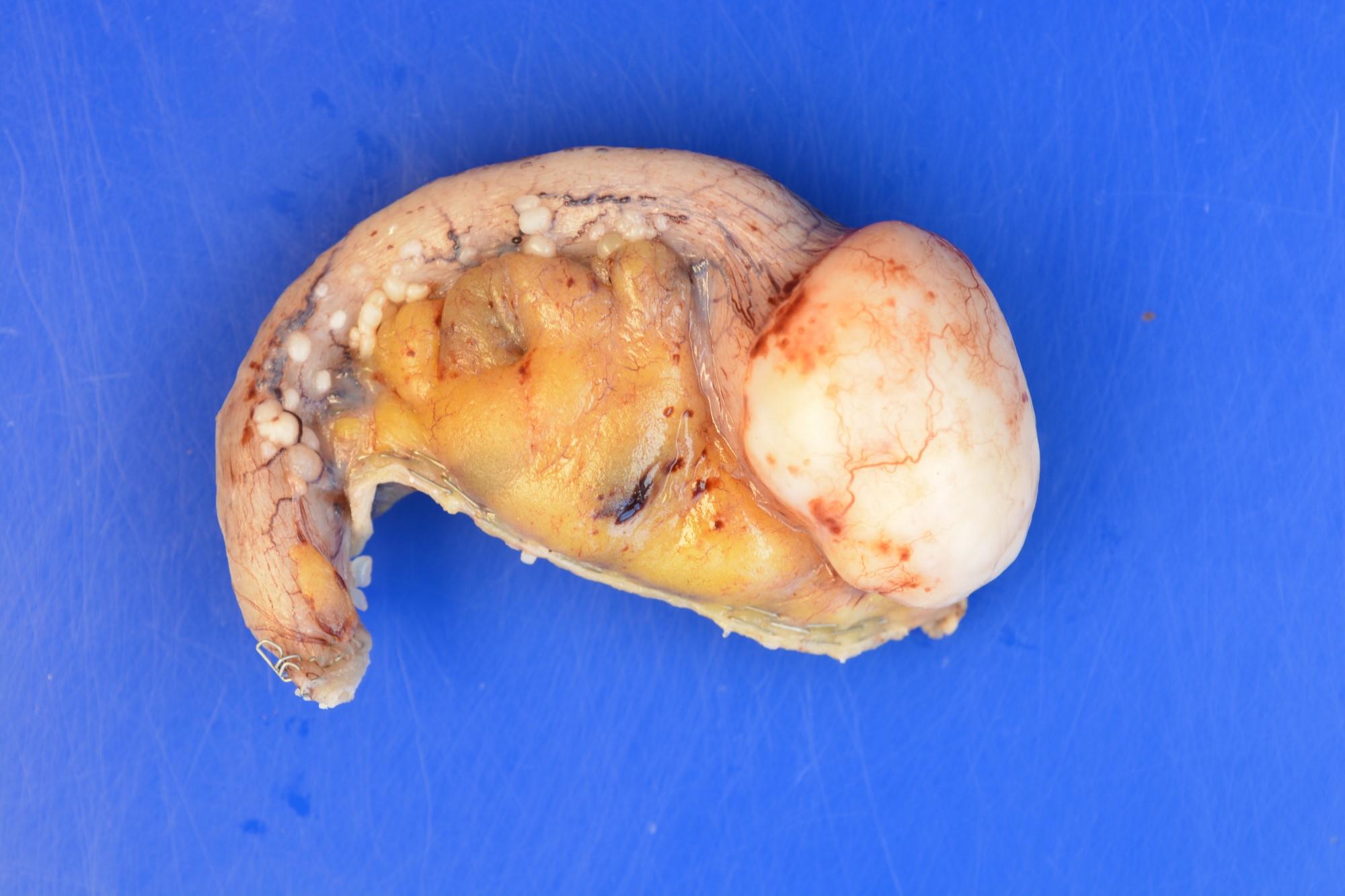 Appendiceal NET in mesentery