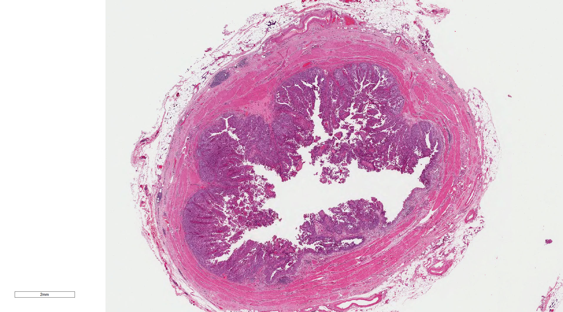 Cross section of ureter