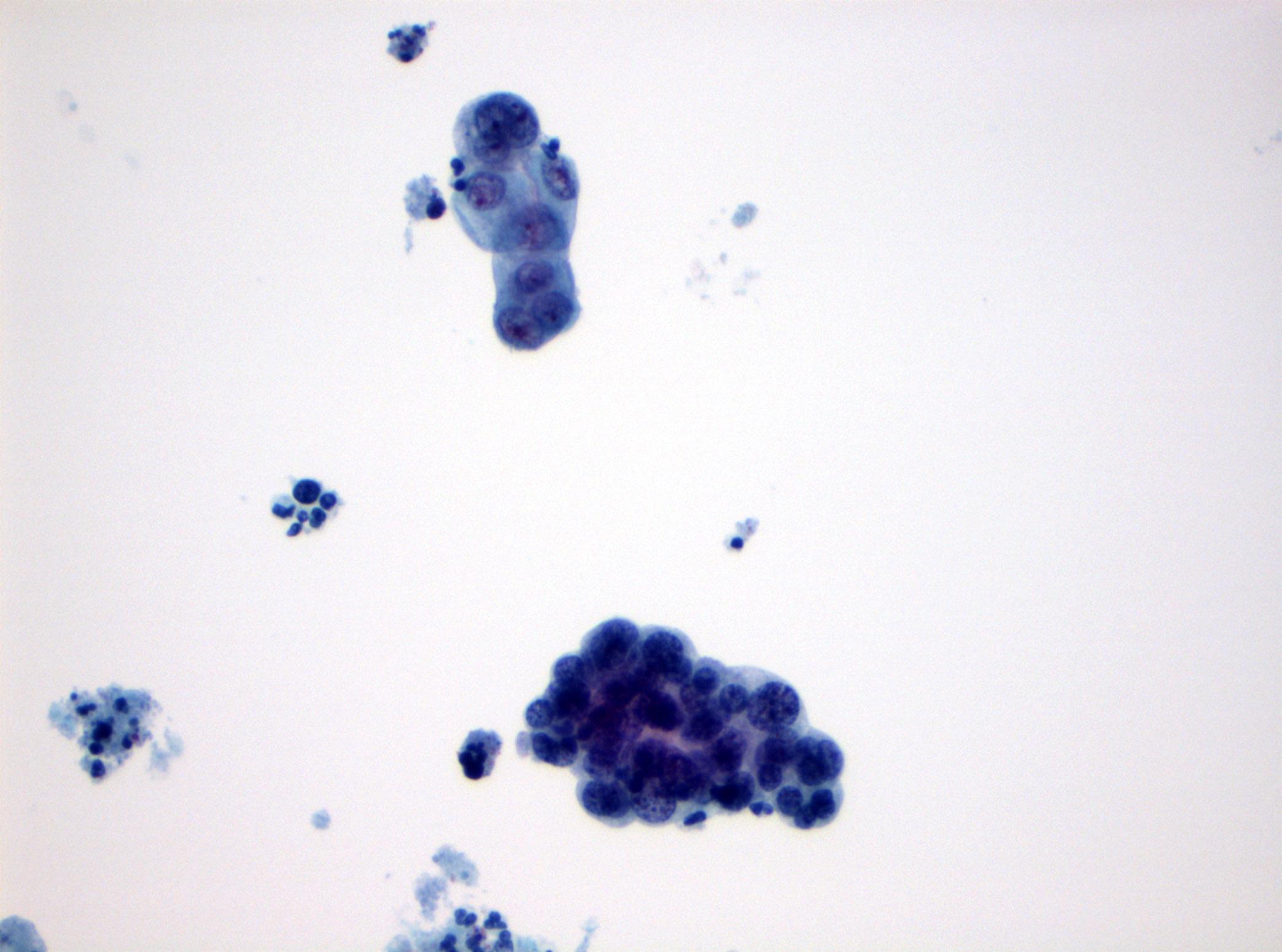 High grade cytology