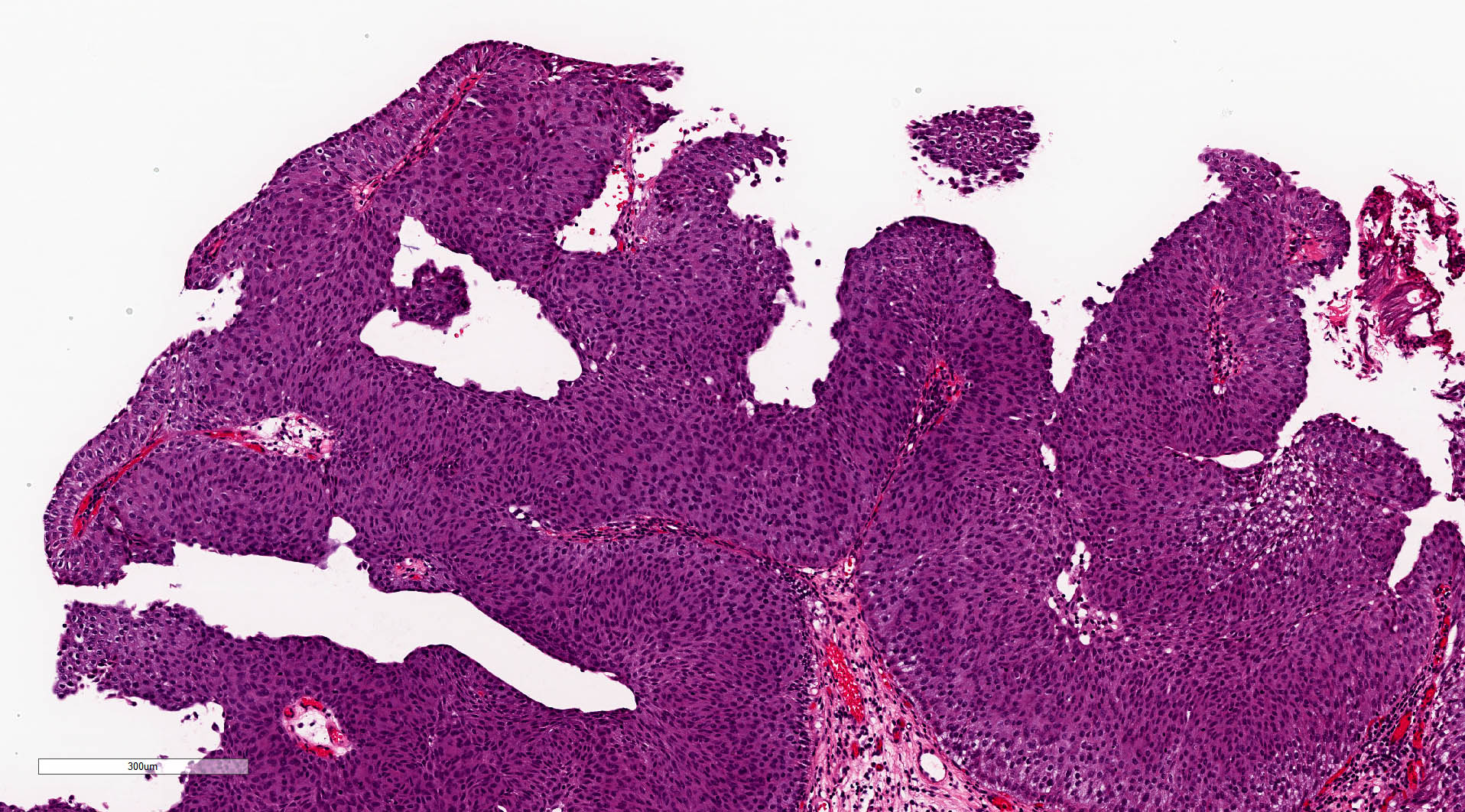Low grade, noninvasive papillary urothelium carcinoma