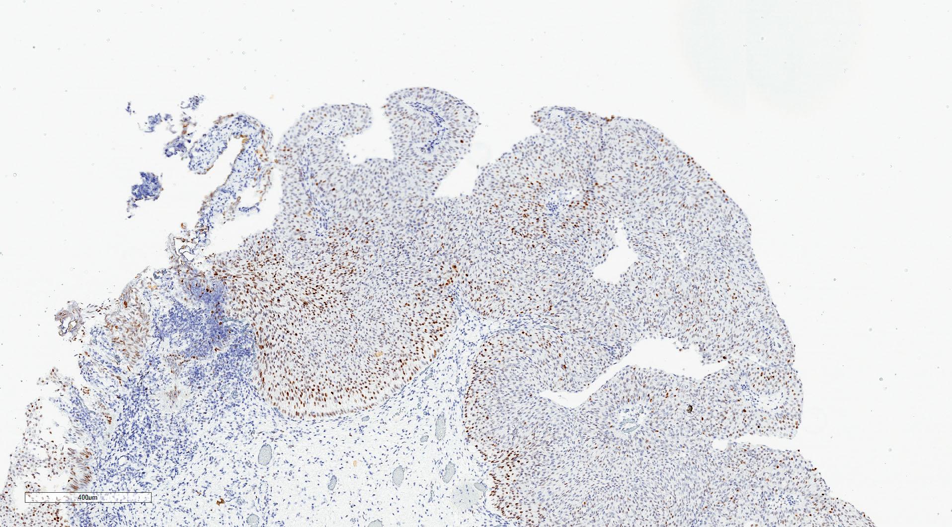 p53 staining
