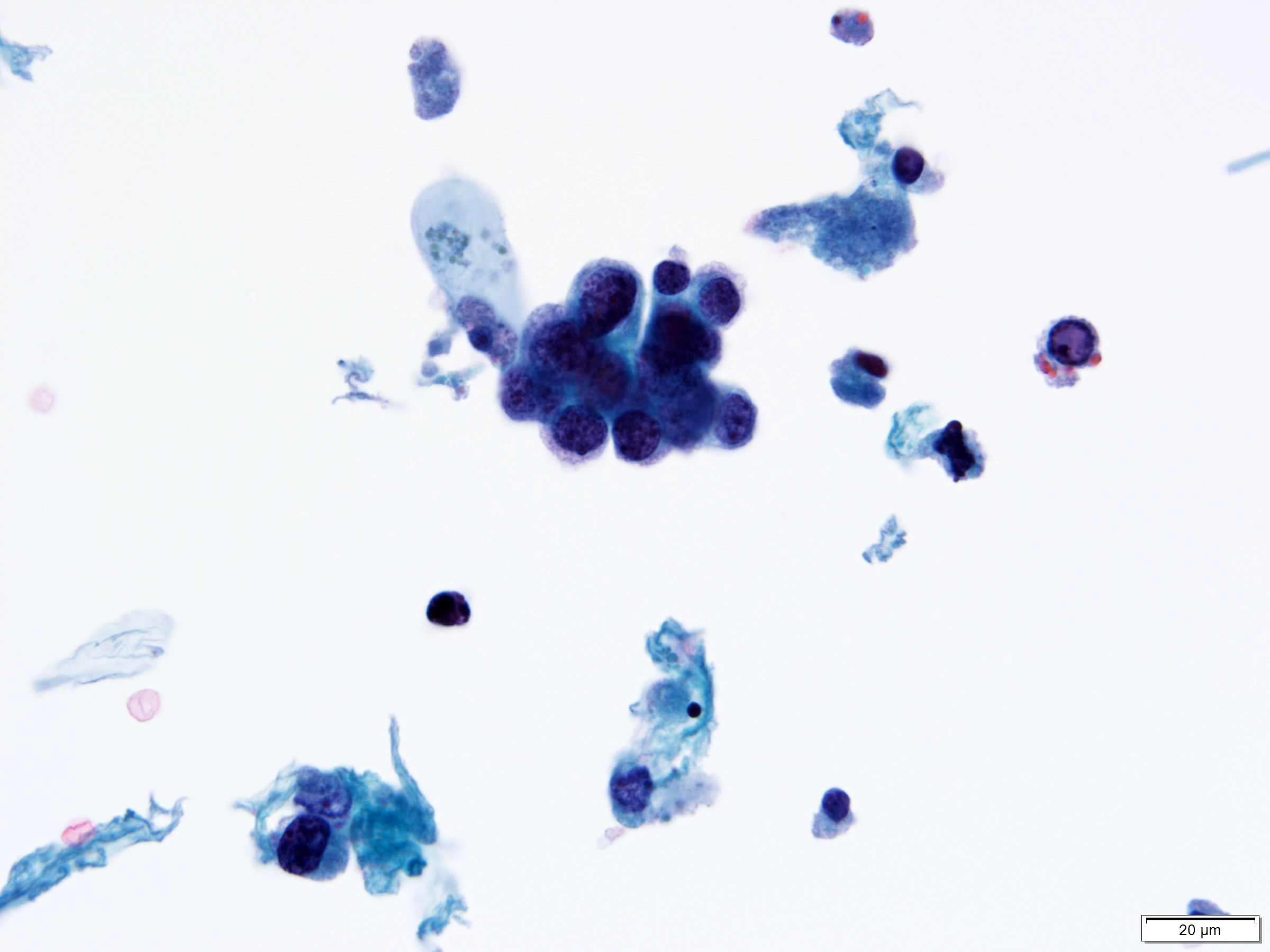 High grade urothelial carcinoma