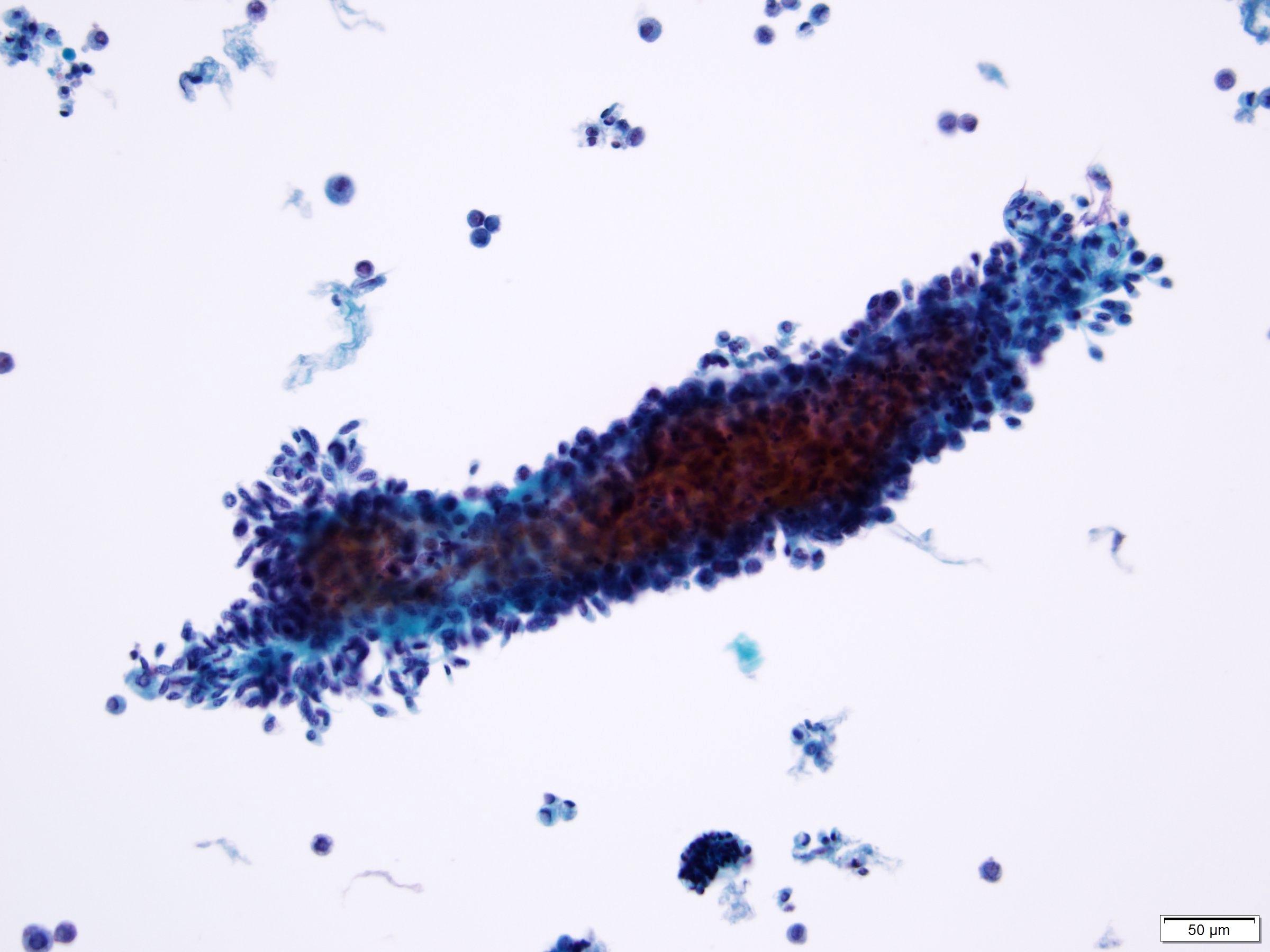 Low grade urothelial neoplasia