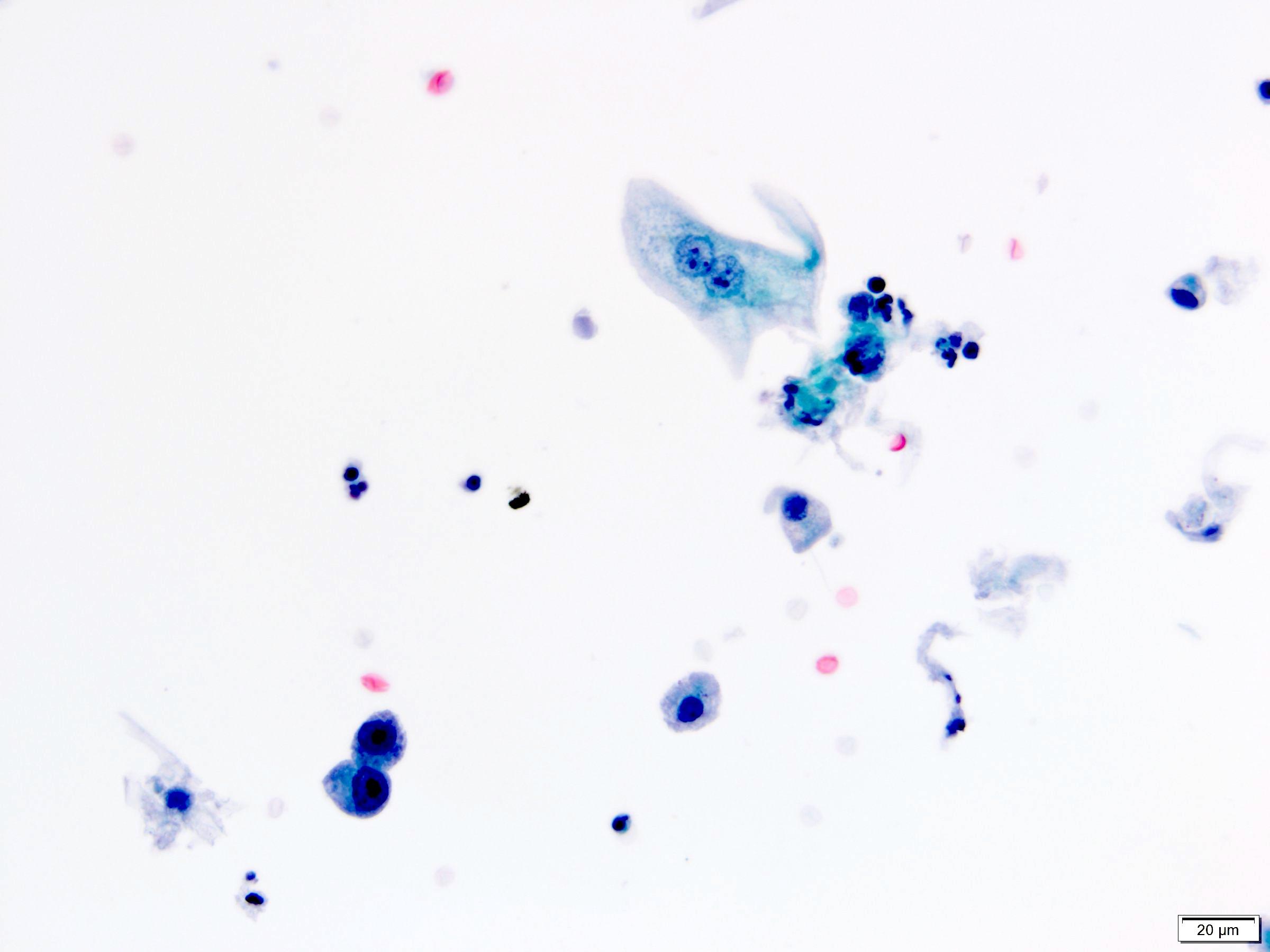 Prostatic adenocarcinoma