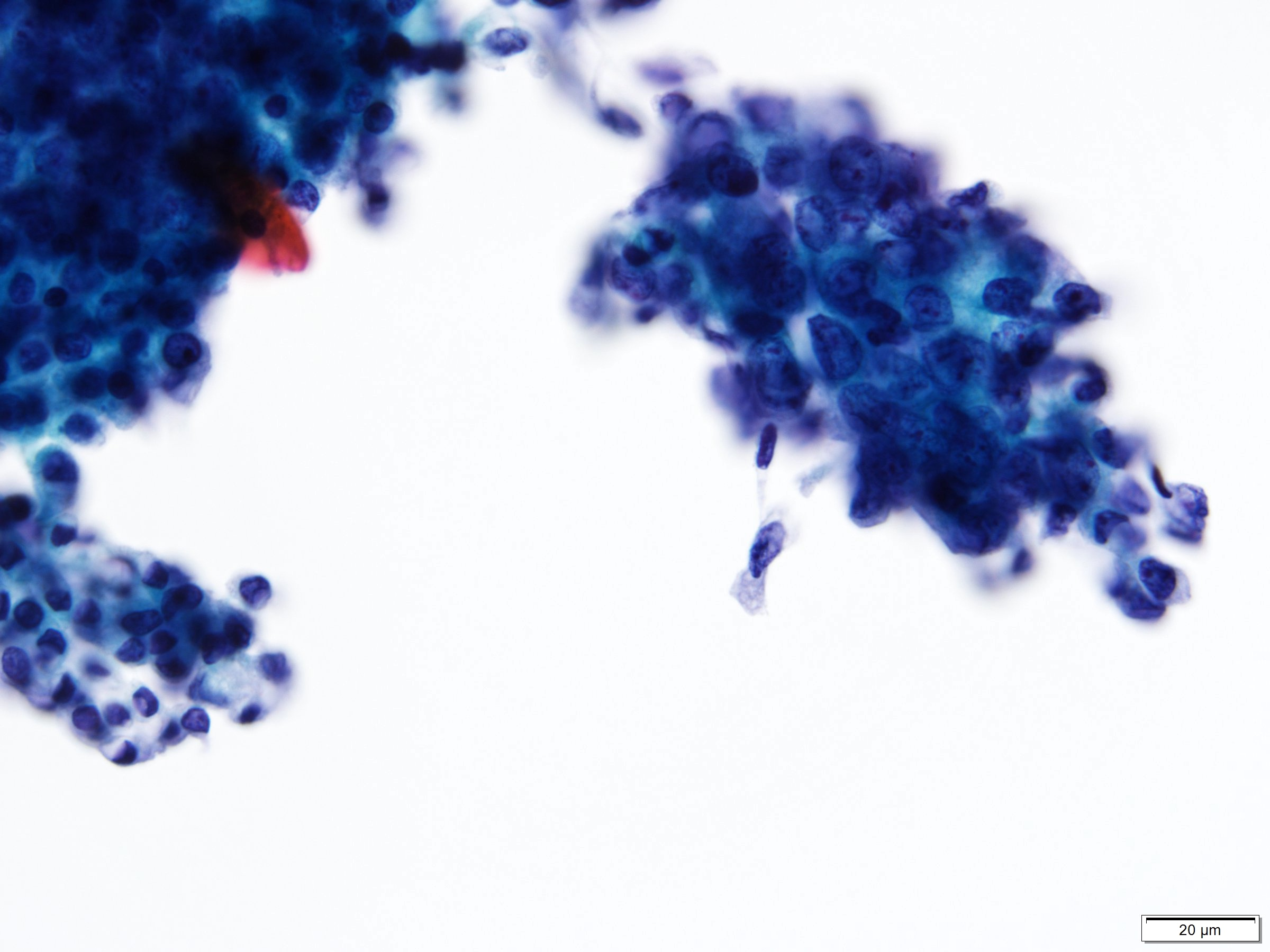 Colorectal adenocarcinoma