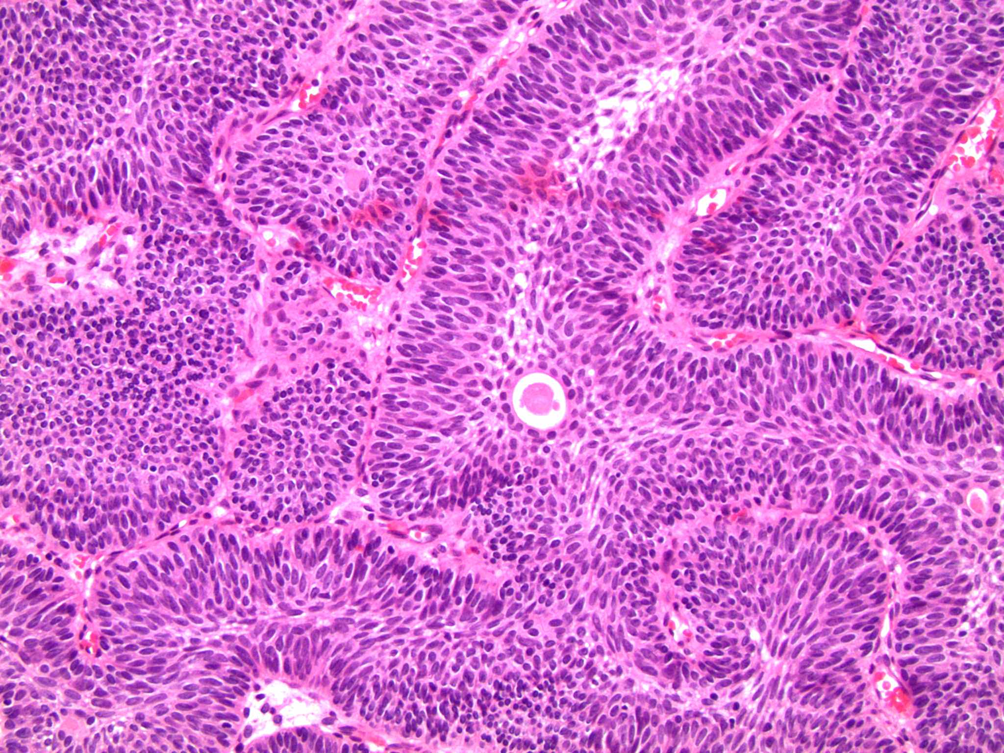 Inverted illoma bladder histology