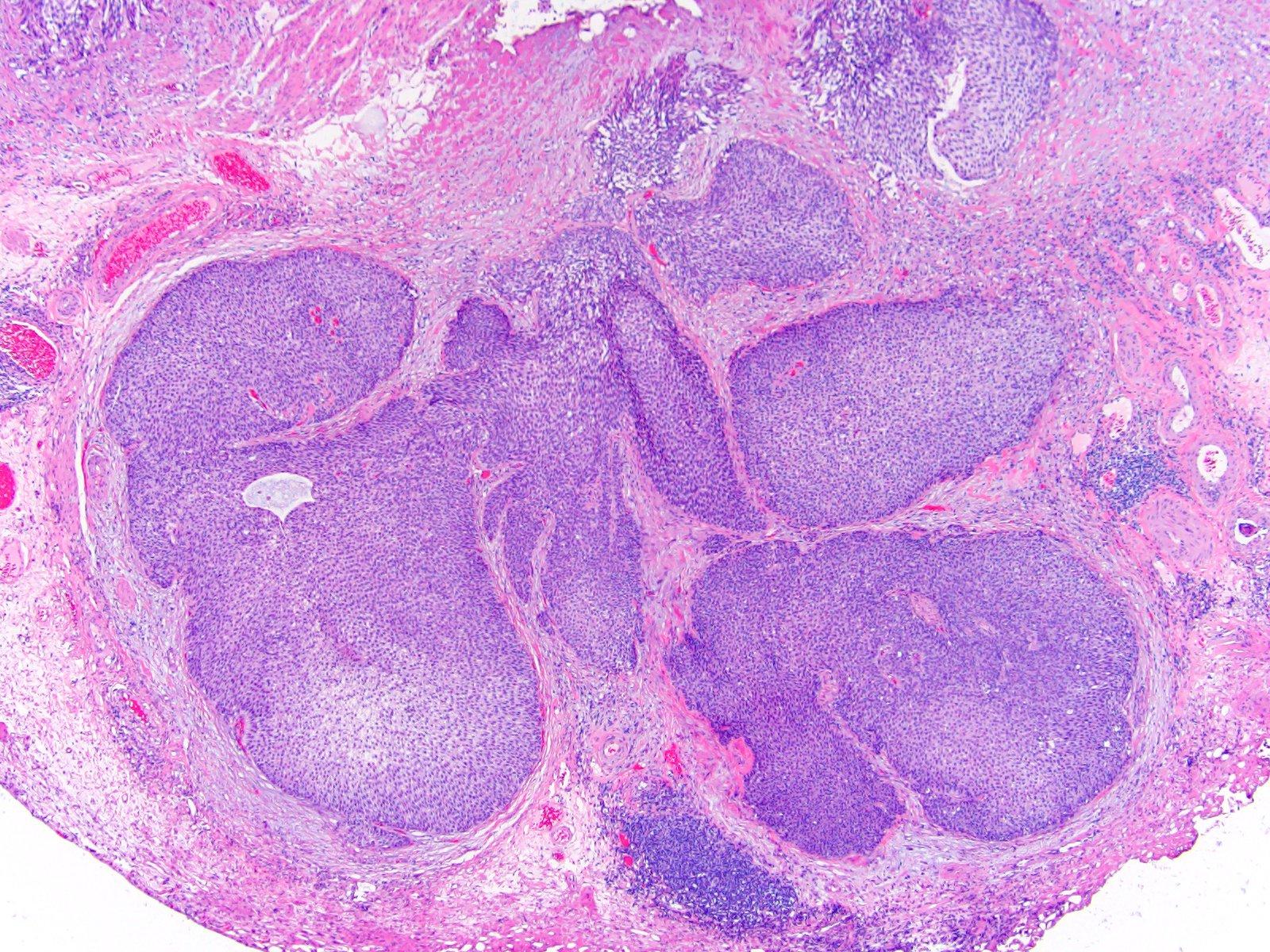 Large nested carcinoma
