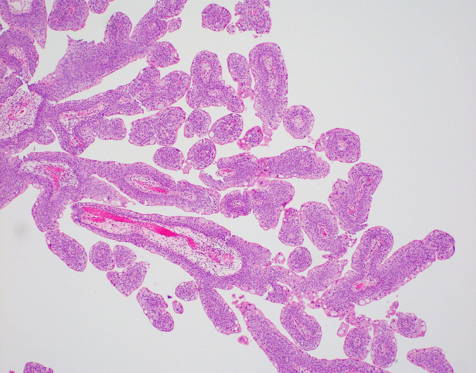 bladder papilloma histology