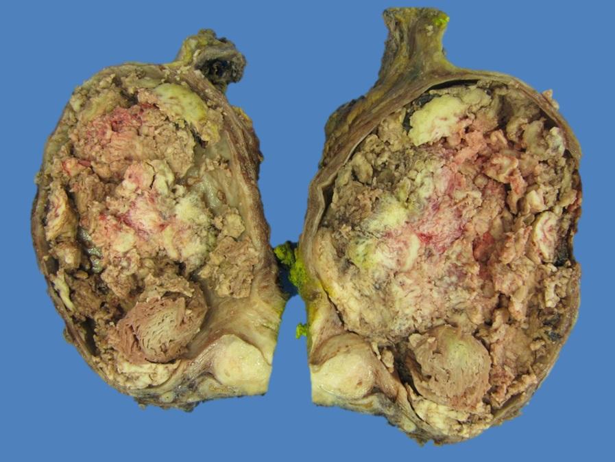 Cystoprostatectomy specimen