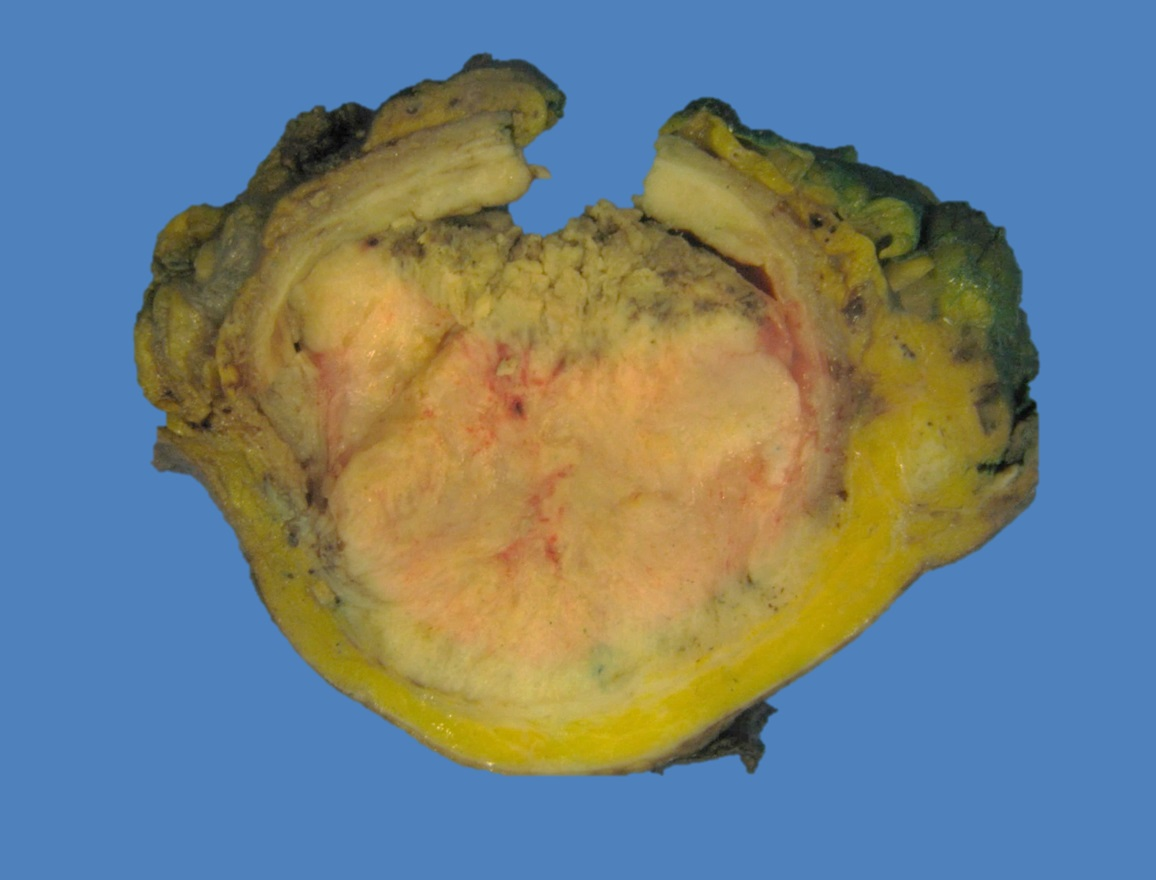 Cross section of tumor