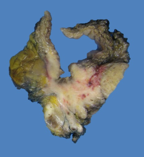 Ulcerating tumor