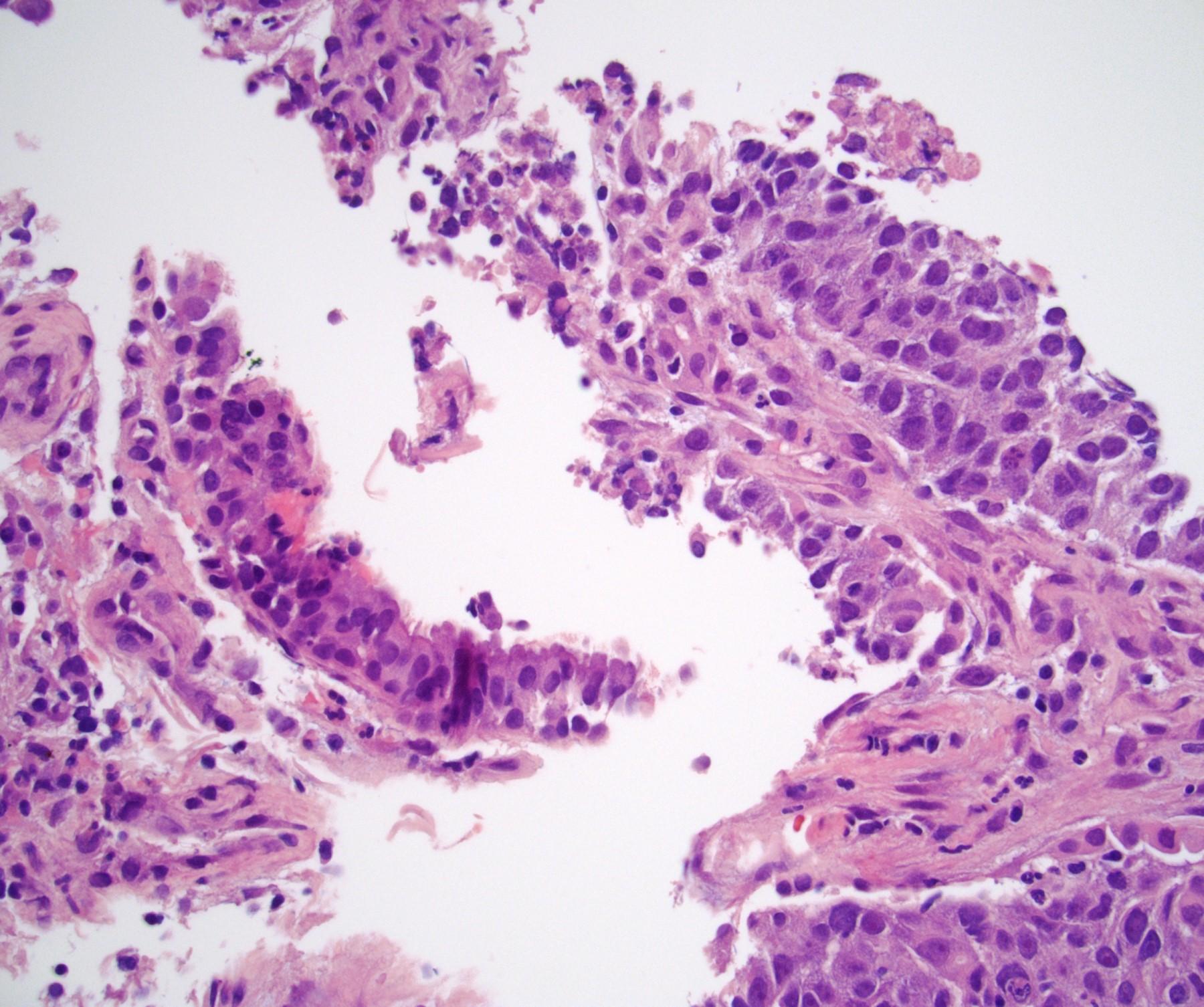 Lung metastasis (pM1b)