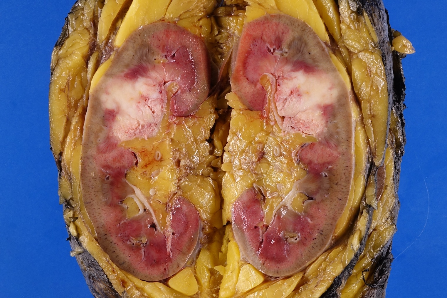 Renal pelvic and peripelvic fat invasion (pT3)