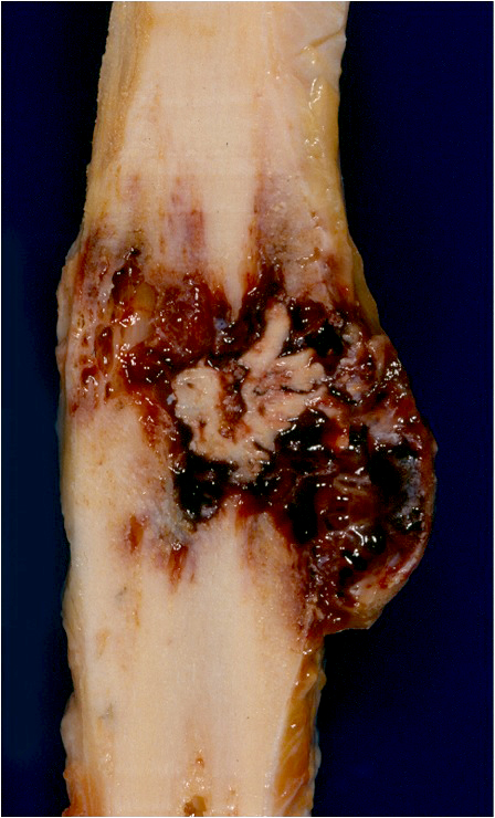 Expansile, demarcated tibial tumor with central nidus and intralesional hemorrhage